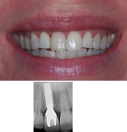 after-implant case1-implant case1